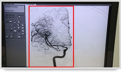 蓝十字脑科_蓝十字李振并主任在超选择性全脑血管造影术的全记录_上海蓝 ...
